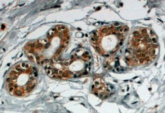 SNX5 Antibody (PA5-18230) in Immunohistochemistry