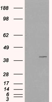 VPS26A Antibody (PA5-18243) in Western Blot