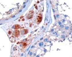 STK35 Antibody (PA5-18247) in Immunohistochemistry