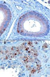 VPS35 Antibody (PA5-18248)