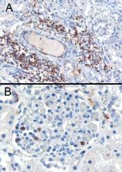SH3BP1 Antibody (PA5-18249) in Immunohistochemistry