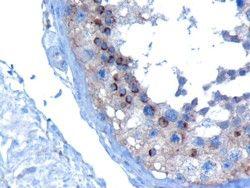 VPS28 Antibody (PA5-18250) in Immunohistochemistry