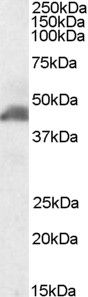 Smooth Muscle Actin Antibody (PA5-18292) in Western Blot