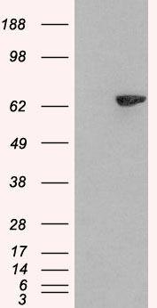 LNK Antibody (PA5-18293) in Western Blot