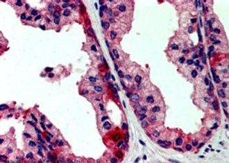 JIK Antibody (PA5-18294) in Immunohistochemistry
