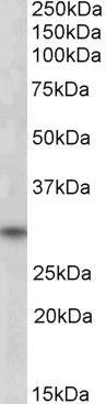 FHL3 Antibody (PA5-18307) in Western Blot