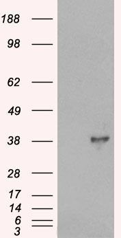DOK5 Antibody (PA5-18309) in Western Blot