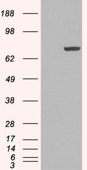 PADI4 Antibody (PA5-18318) in Western Blot