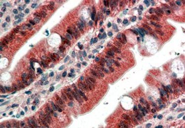 FGFR1 Antibody (PA5-18344)
