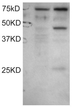 DYX1C1 Antibody (PA5-18347)