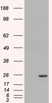 GSTP1 Antibody (PA5-18394) in Western Blot