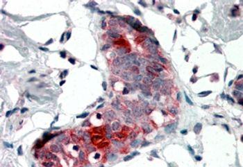 Mammaglobin A Antibody (PA5-18396)