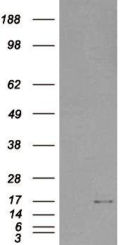 SH2D1A Antibody (PA5-18398) in Western Blot