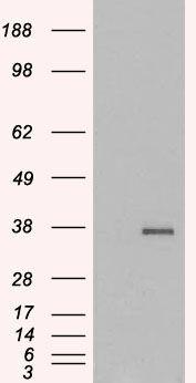 GDF15 Antibody (PA5-18415) in Western Blot