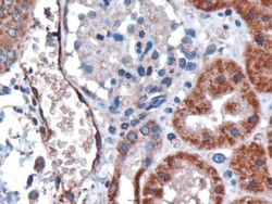 DARC Antibody (PA5-18424) in Immunohistochemistry