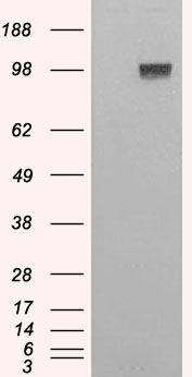 ENPP1 Antibody (PA5-18429) in Western Blot