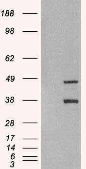SIRT3 Antibody (PA5-18438) in Western Blot