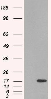 SH2D1A Antibody (PA5-18448) in Western Blot