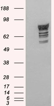 PDE4D Antibody (PA5-18459) in Western Blot