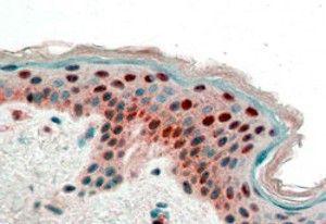 14-3-3 sigma Antibody (PA5-18462)