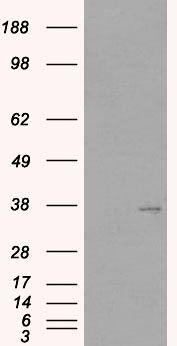 TIM3 Antibody (PA5-18470) in Western Blot