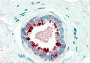 GCDFP-15 Antibody (PA5-18507)