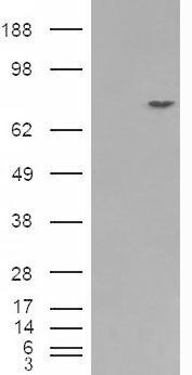 PMEL Antibody (PA5-18538) in Western Blot