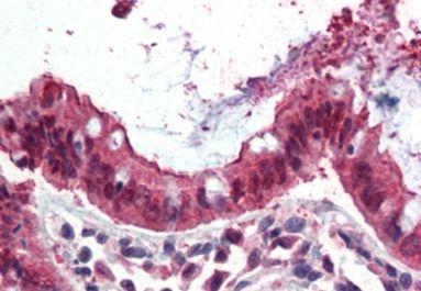 Ezrin Antibody (PA5-18541)