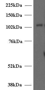 Munc13-4 Antibody (PA5-18550) in Western Blot