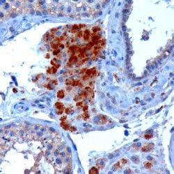 SBP2 Antibody (PA5-18580)
