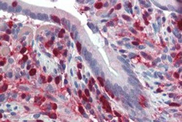 S100A4 Antibody (PA5-18601)