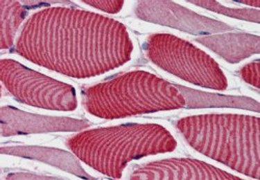 AS160 Antibody (PA5-18644) in Immunohistochemistry