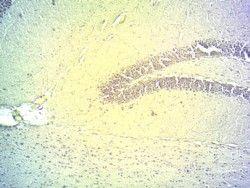 DIO2 Antibody (PA5-18659)