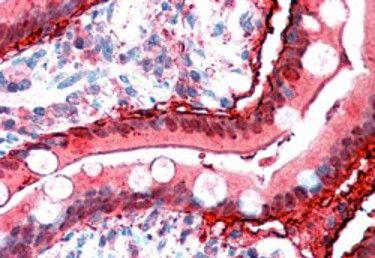 FABP2 Antibody (PA5-18700) in Immunohistochemistry
