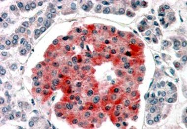 KCNJ11 Antibody (PA5-18710)