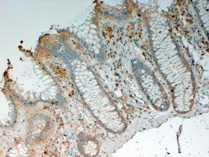 IL-12 p40 Antibody (PA5-18740)