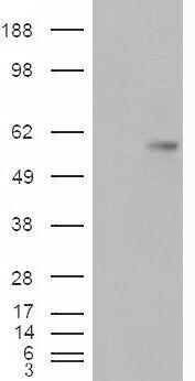 B7-H4 Antibody (PA5-18771) in Western Blot