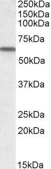 GC Antibody (PA5-18795) in Western Blot