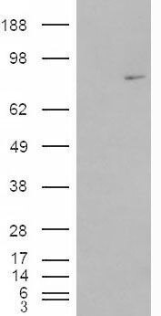 MEPCE Antibody (PA5-18813) in Western Blot