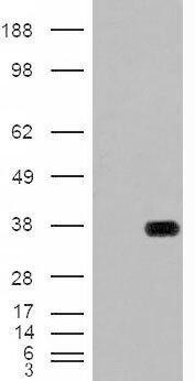 HADH Antibody (PA5-18840) in Western Blot