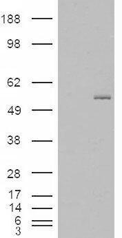 GCNT3 Antibody (PA5-18857) in Western Blot