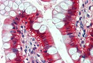 N-Ras Antibody (PA5-18888) in Immunohistochemistry
