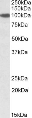 Sec23a Antibody (PA5-19011) in Western Blot