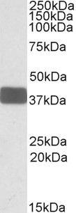 WNT9B Antibody (PA5-19149)