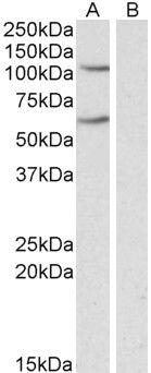 IREB2 Antibody (PA5-19158) in Western Blot