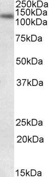 DNA Ligase I Antibody (PA5-19162)