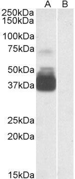 P2X7 Antibody (PA5-19165) in Western Blot