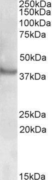 RAPSN Antibody (PA5-19166) in Western Blot