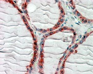 CLIP1 Antibody (PA5-19167) in Immunohistochemistry