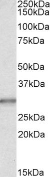 Carbonic Anhydrase I Antibody (PA5-19177) in Western Blot